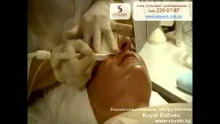Косметологическое оборудование Казахстан. Octoline аппарат. Газожидкостный пилинг.(, 2013-04-30T10:57:44.000Z)