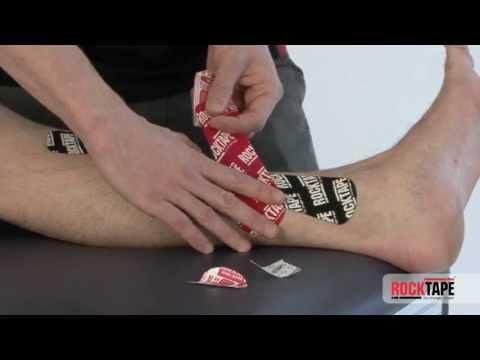 Rocktape - Taping for shin splints