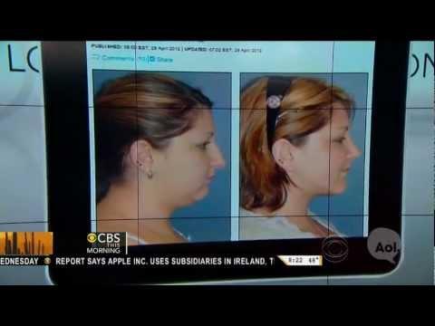 Chin Implant NYC | New York Chin Augmentation | Chin