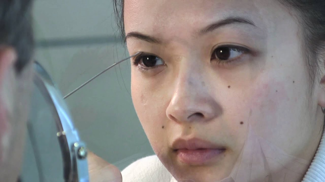 How Will Double Eyelid Surgery Change My Eyes