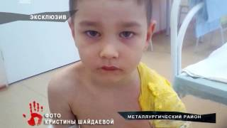 Няня вылила кастрюлю горячего супа на 5-летнего ребенка