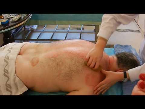 Массаж Гуаша - лечение в Китае,  г. Далянь