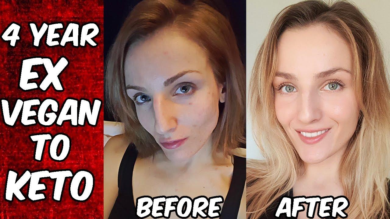 Vegan Spotting (Hair loss and the Freelee skin) - YouTube