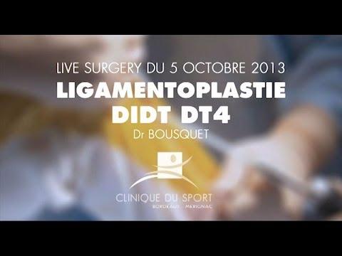 Live Surgery Ligament croisé antérieur type DT4 sous arthroscopie