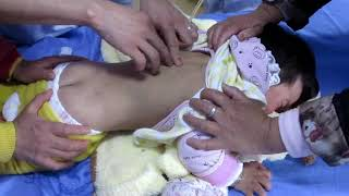 Acupuncture for Cerebral Palsy   Dr Shashikant www Imwellyoga com IM WELL PVt Ltd
