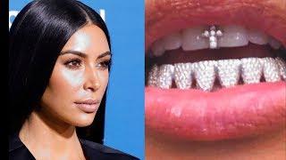 Бриллиантовые зубы Ким Кардашьян шокировали всех