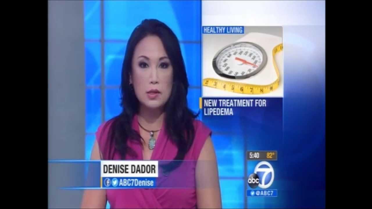 Lipedema Treatment with Dr David Greuner Shown On ABC 7 News