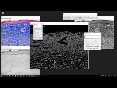 ImageJ : Measuring Areas of Histological sections