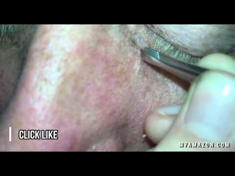 blackhead,-mole-or-dilated-pore-of-winer?-👍👍👍👍