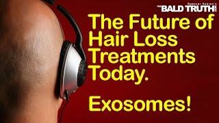 The Bald Truth - Tuesday Oct.22nd  2019 - EXOSOMES!!! The Future of Hair Loss Cures?