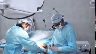 Пластическая операция по увеличению груди. Пластика груди. Маммопластика.(Как рождаются шедевры... увеличение груди за 11 секунд. Таймлапс видео эндопротезирования молочных желез..., 2016-03-21T13:28:17.000Z)