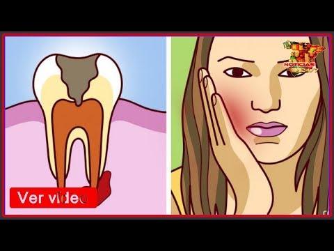 Síntomas de un absceso dental y cómo tratarlo en caso de emergencia