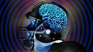 NFL Concussion Protocol is B.S.