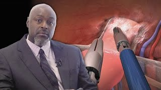 (Part 2) Animations Pay for Themselves - Alabama Surgeon George Crawford