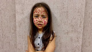 Funny story about the marks on the face of Saliha and Hafsa