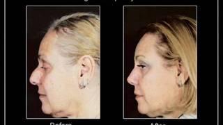 Mature Age Rhinoplasty Toronto Thumbnail