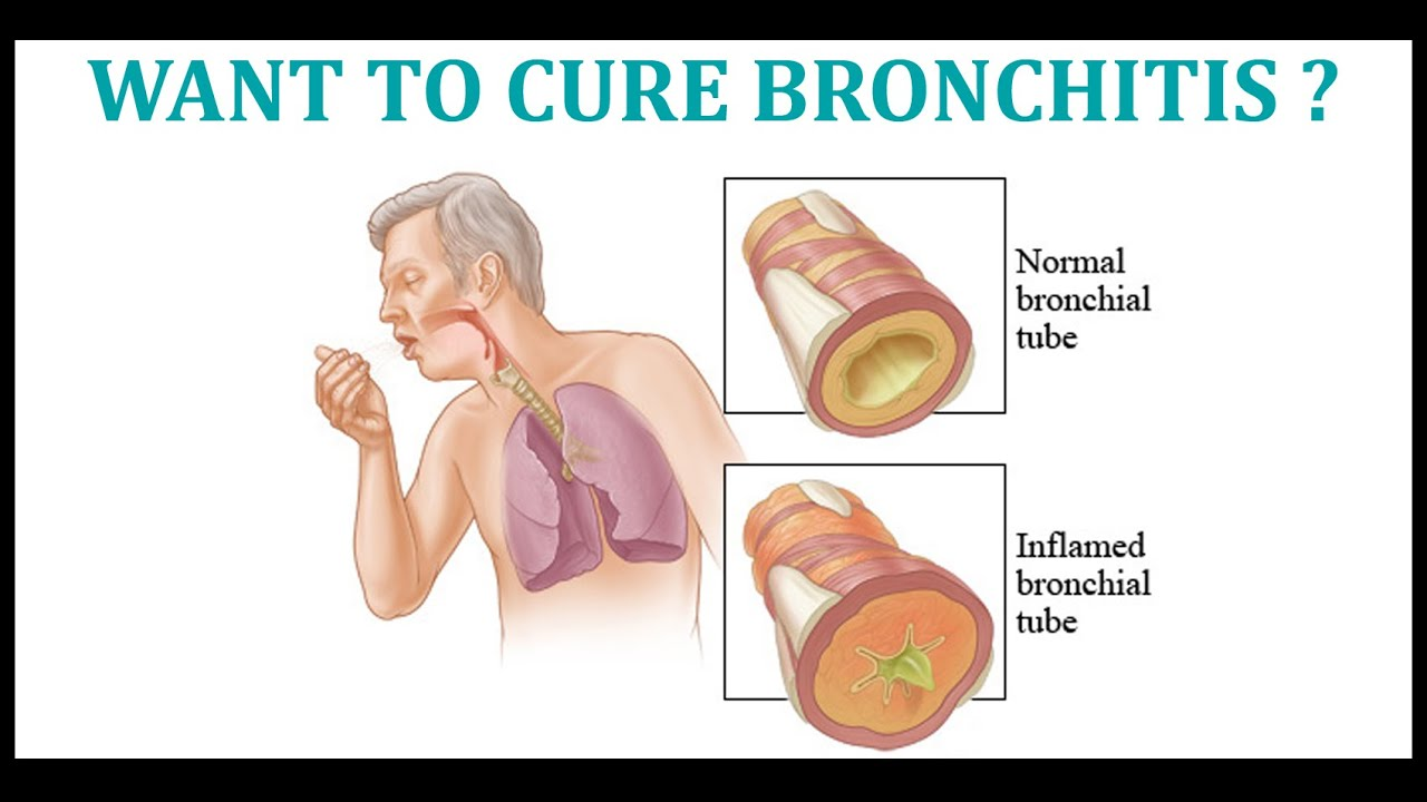 Acupressure treatment for bronchitis cure yourself your home by acupressure treatment for bronchitis cure yourself your home by seeing my guide solutioingenieria Choice Image