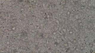 Giardia lamblia - hpf