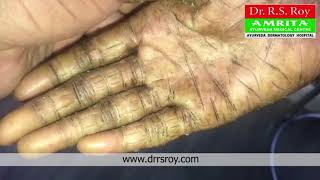 Treatment for Ichthyosis Vulgaris|Before and After Treatment|Ayurveda for Ichthyosis in Kerala