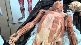 Мышцы верхней конечности на трупе(ПОДПИСЫВАЙСЯ НА КАНАЛ!!!!! И НЕ ПРОПУСТИ НОВЫЕ ВИДЕО. Ставьте оценки и комментарии моим видео. Мне нужна..., 2013-10-30T22:40:57.000Z)