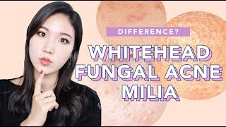 🤔Difference Between Whiteheads, Milia and Fungal Acne : What it is, How to treat