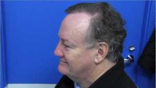 Hair Transplants 2013