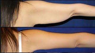 How To Get Rid Of Arm Fat At Home