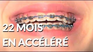 22 mois de bagues en 2 minutes - Appareil-dentaire.info