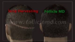 Neograft Automated FUE no scalpel no stitch hair transplant by Dr Malouf Thumbnail
