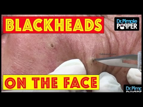 Short but Sweet Blackhead Extractions with Dr Pimple Popper