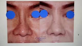 Video konsultasi operasi plastik hidung. Rhinoplasty case.