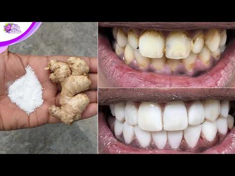 تبيض الاسنان - أسرع 8 طرق لتبييض الأسنان خلال دقائق في المنزل