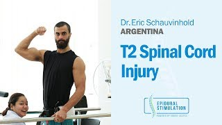 Great Progress Seen After Epidural Stimulation for T2 Spinal Cord Injury Patient Eric from Argentina