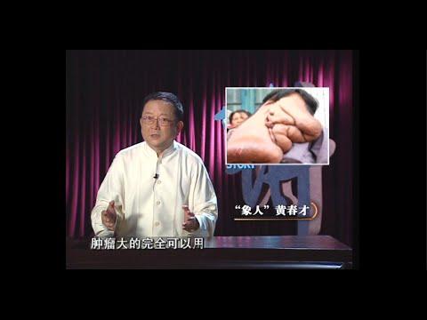 Wang Gang Story Show reported elephant man Huang Chuncai's story @Guangzhou Fuda Cancer Hospital