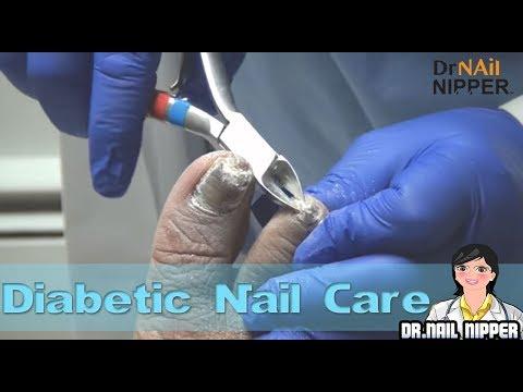 Diabetic Nail Care – Clipper, Medicool Drill and Curette