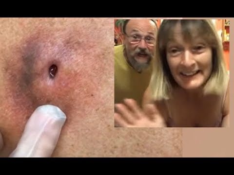 70+ Days Old Infected Cyst - Su Verhoeven's Cysts & Popping