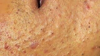 Retrait de points noirs et blancs ~ visage remplis d'acné #1