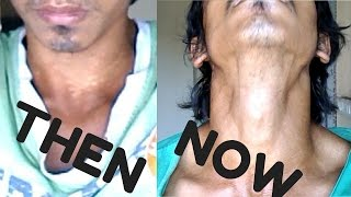 Treatment of White spots   FUNGUS