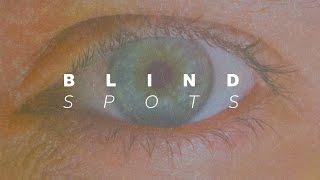Blind Spots - Pastor Paul Scanlon (March 19, 2017)