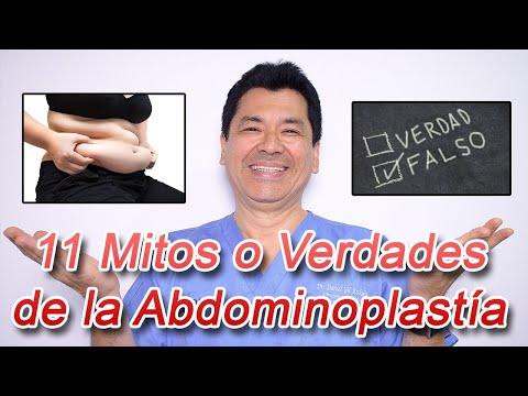 11 Mitos o Verdades de la Abdominoplastía