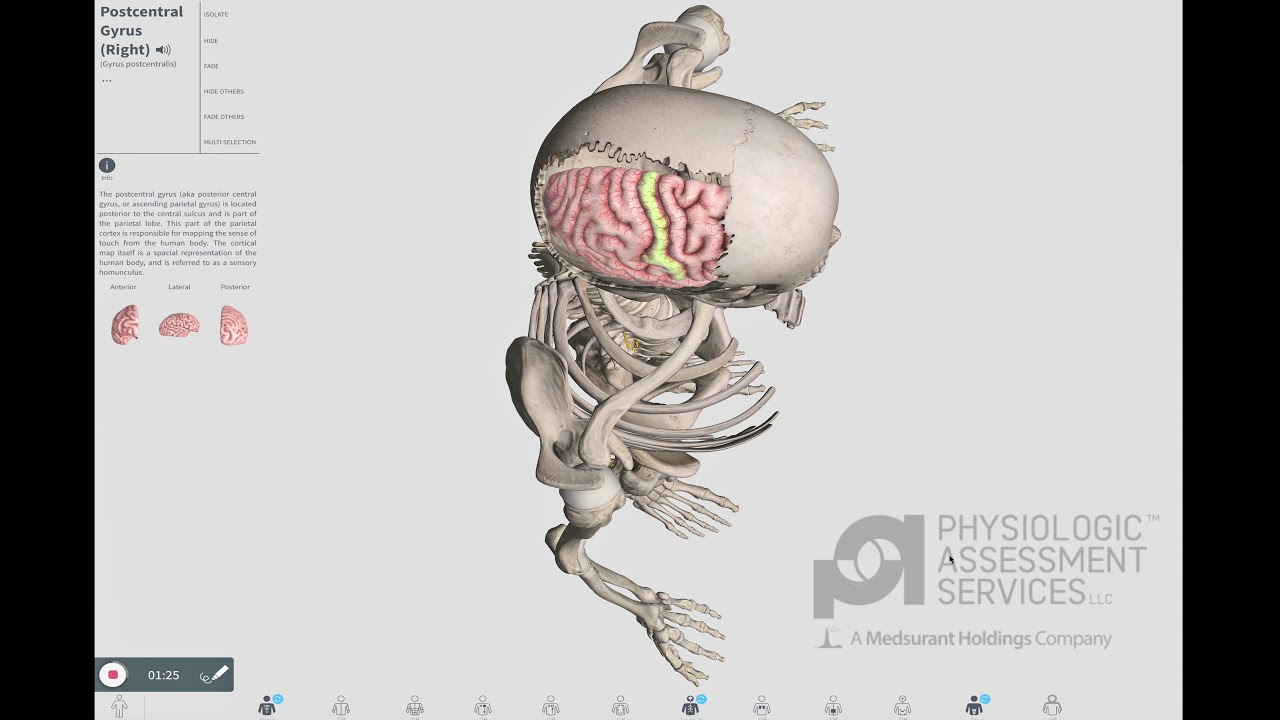 SSEP: Anatomy for Conventional IONM - YouTube