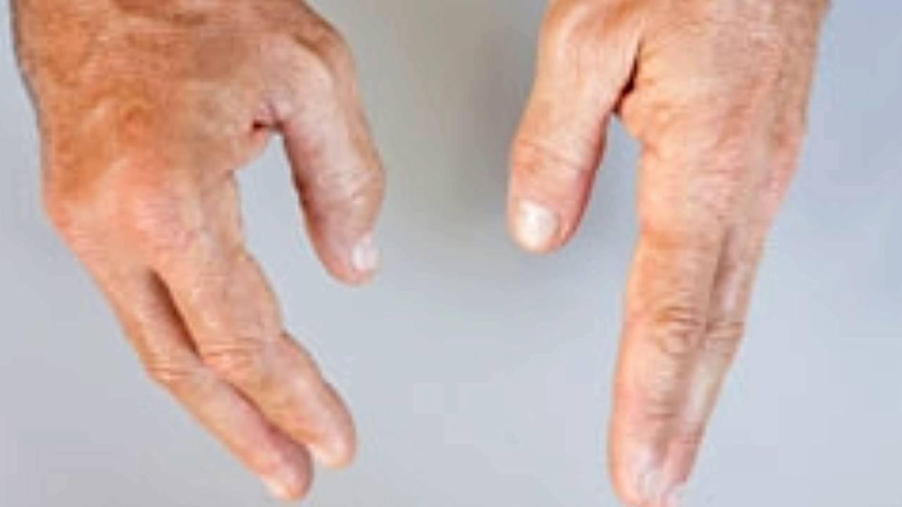 swollen finger joints youtube