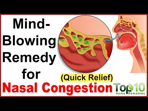 Instant Relief from Nasal Congestion - Home Remedies