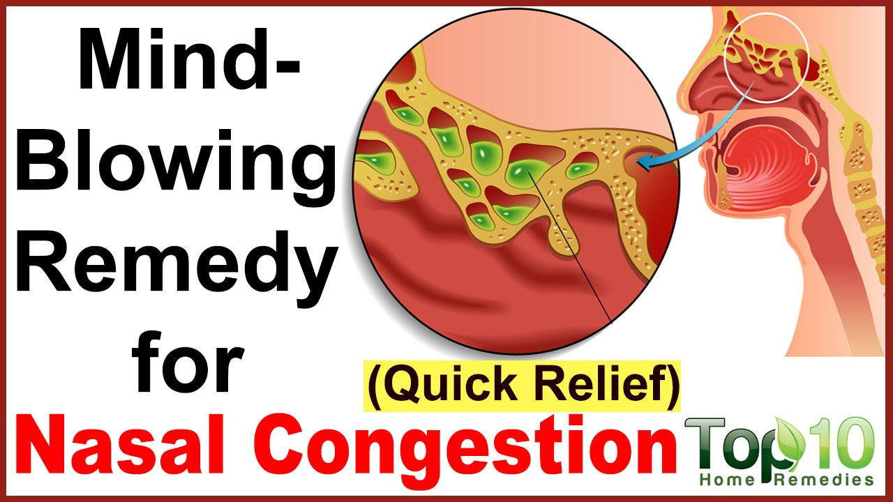What Is The Best Home Remedy For Nasal Congestion