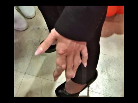 Обезображенная болезнью Началова выдвинула ультиматум Малышевой