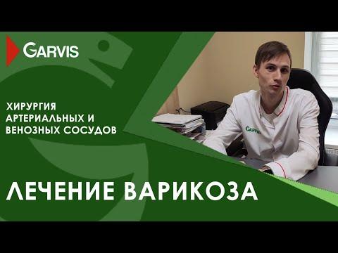 Лечение варикоза в клинике GARVIS