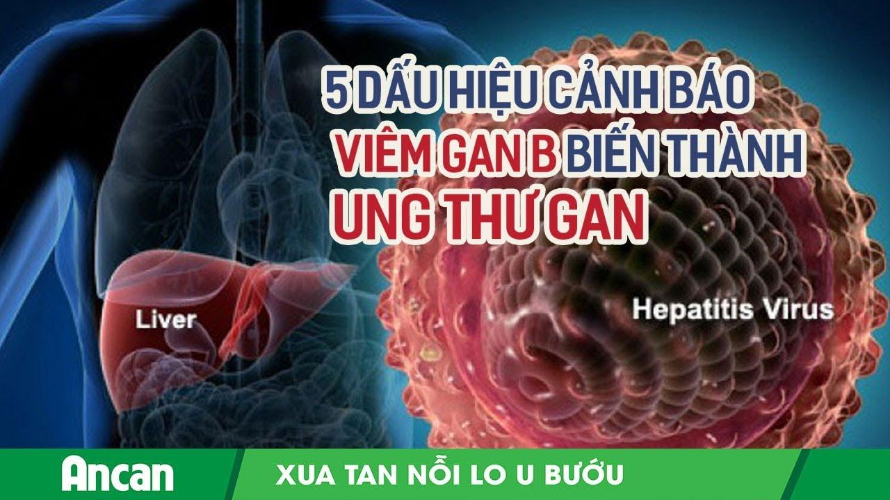 Dấu hiệu viêm gan B biến thành ung thư gan