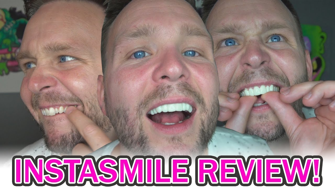 My Instasmile Review Youtube