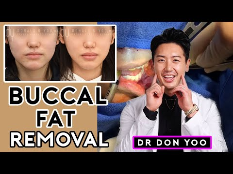all-about-buccal-fat-removal-surgery-and-recovery---dr.-donald-b.-yoo