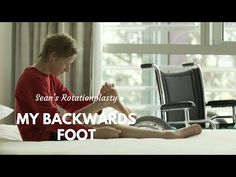 My Backwards Foot: Sean's Rotationplasty